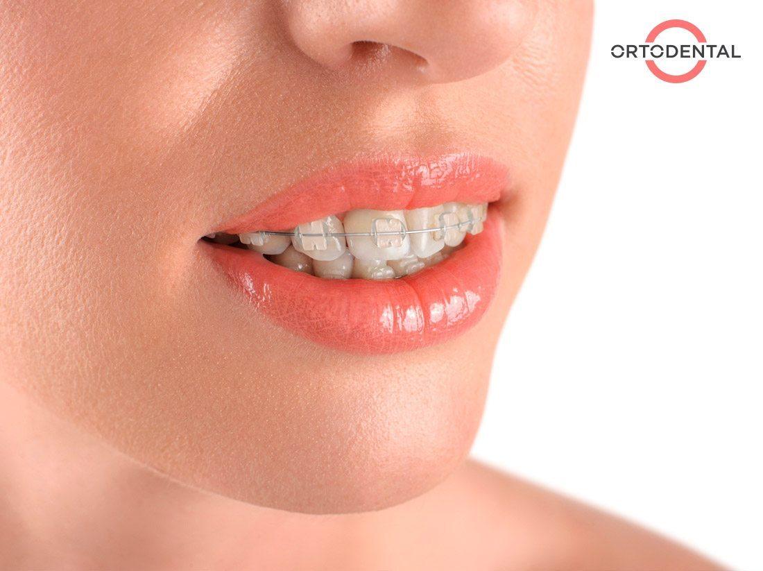 caso ortodoncia - Ortodental