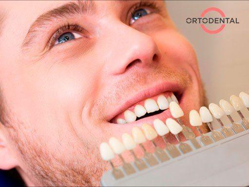 qué son las carillas dentales